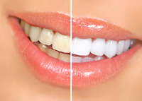 teeth whitening in Abington, PA