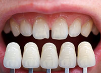 Dental veneers in Abington, PA